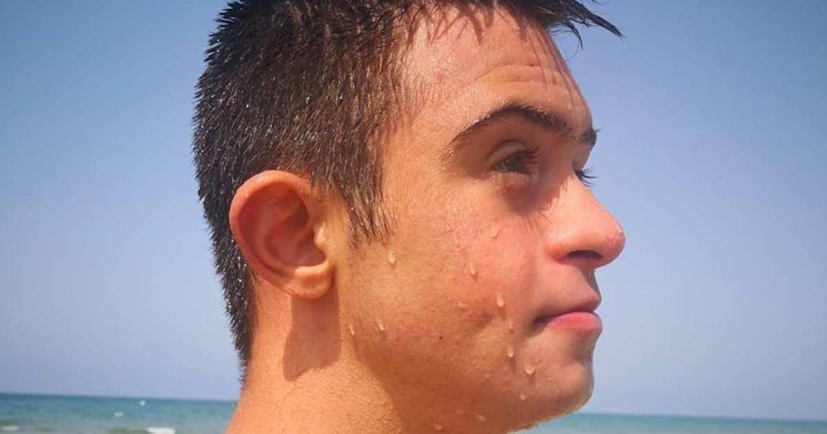 Adolescent trisomique