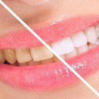 La recette secrète d'un dentiste pour blanchir ses dents facilement