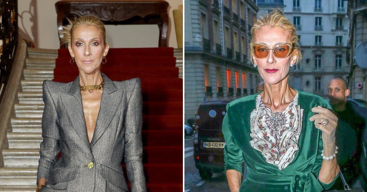 Céline Dion : la révélation sur la maladie incurable qui la frappe