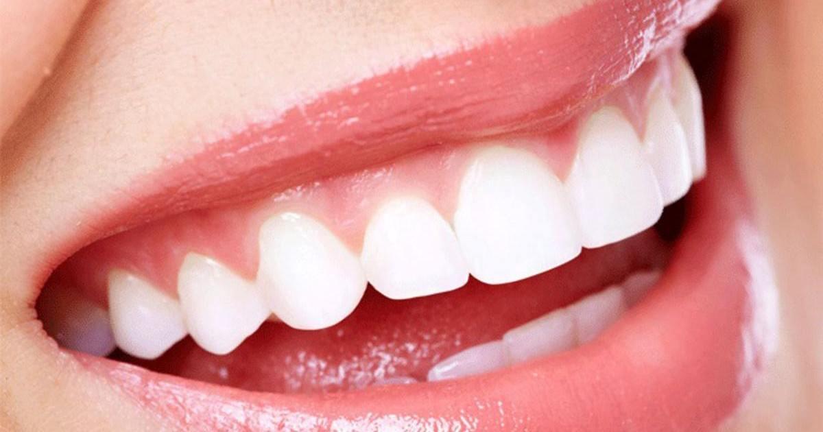 Comment éliminer le tartre des dents rapidement ?