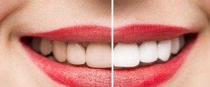 Comment avoir les dents plus blanches grâce à des...