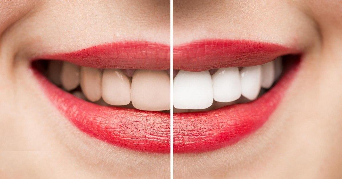 Avoir les dents plus blanches