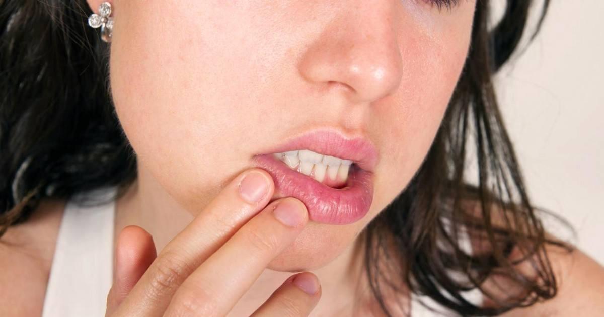 Bouton de fièvre: Astuces simples et efficaces pour les faire disparaîtres