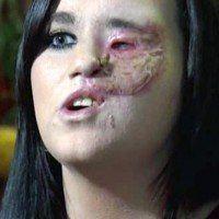 Une femme perd la moitié de son visage à cause d'un fer à lisser