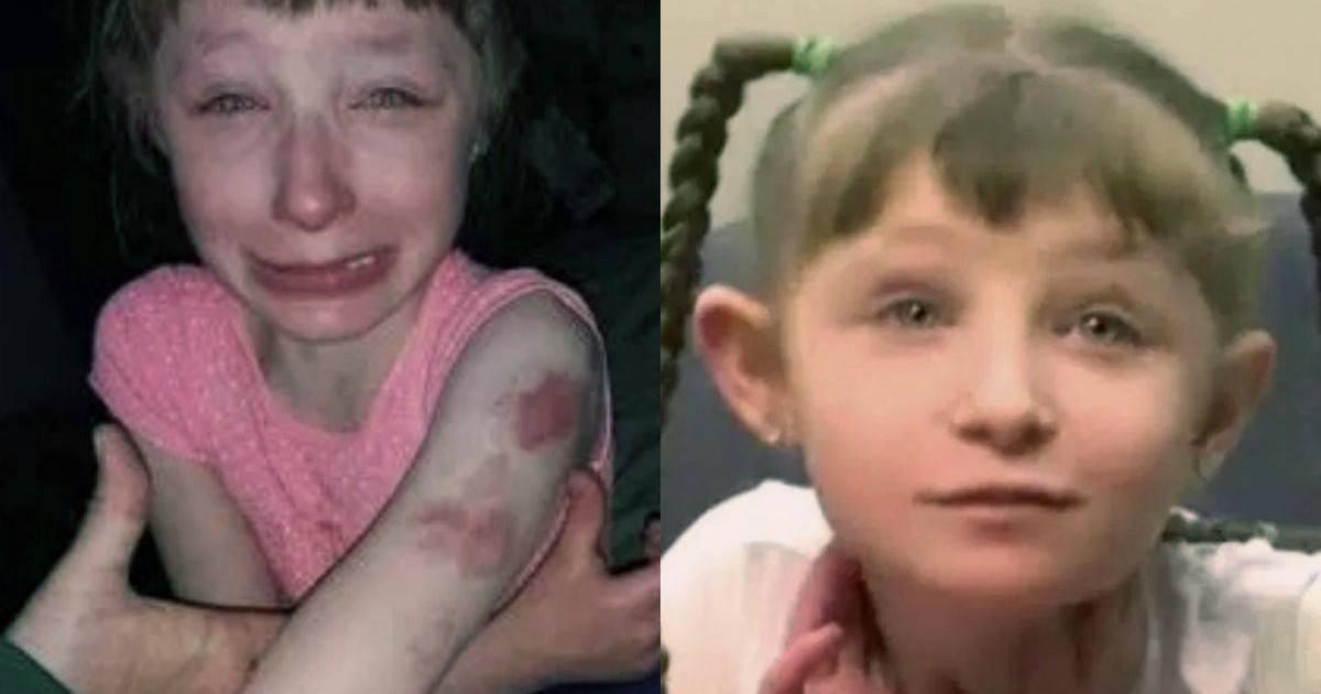 Une fille handicapée se fait mordre dans un autobus scolaire