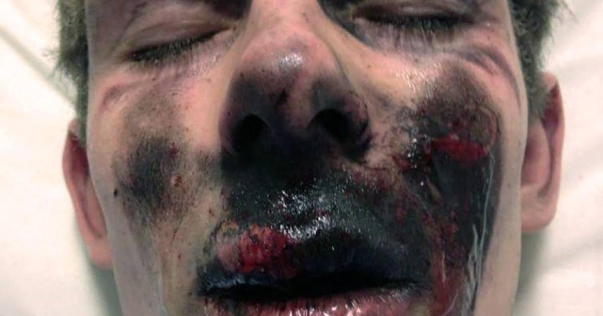Un jeune homme brûlé par l'explosion de sa cigarette électronique