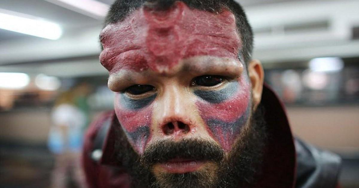 Un homme qui rêve de ressembler à un démon se fait couper le nez