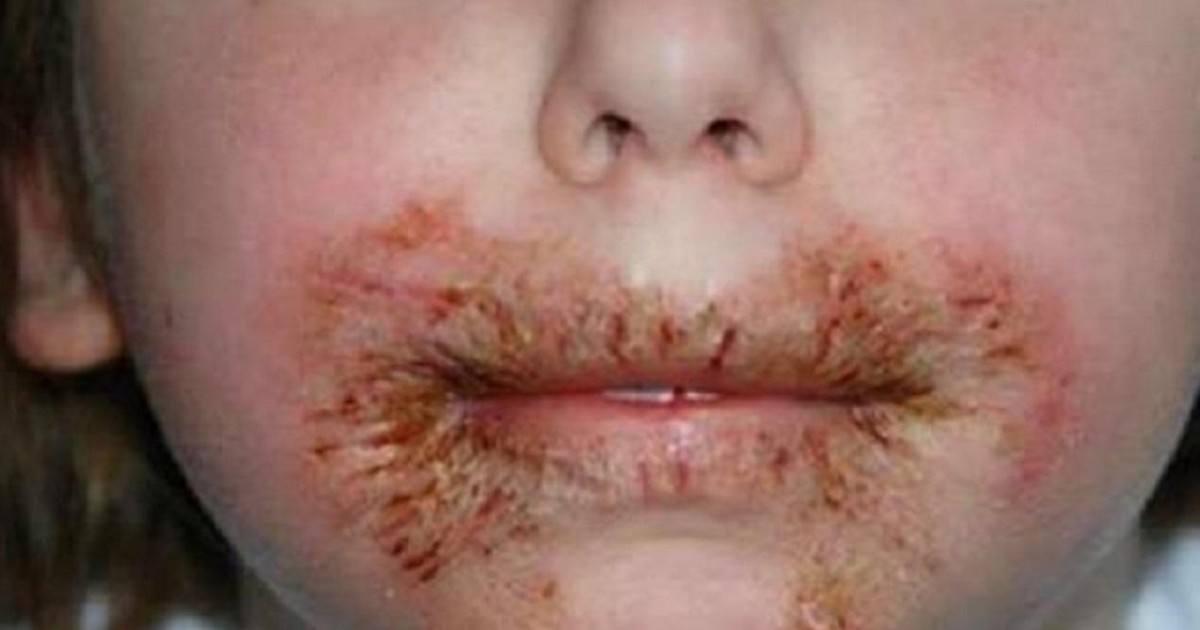Ne jamais nettoyer le visage des enfants avec des lingettes pour bébé