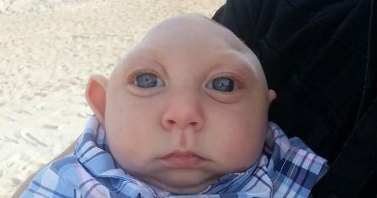 Jaxon, le bébé né sans crâne, fête ses un an et émeut le web