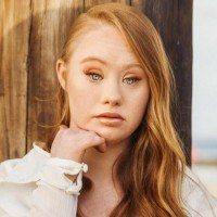 Atteinte de trisomie 21 cette jeune fille se bat pour devenir mannequin