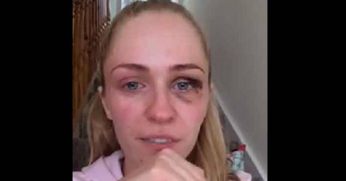 Une maman battue dénonce les violences conjugales dans une vidéo...