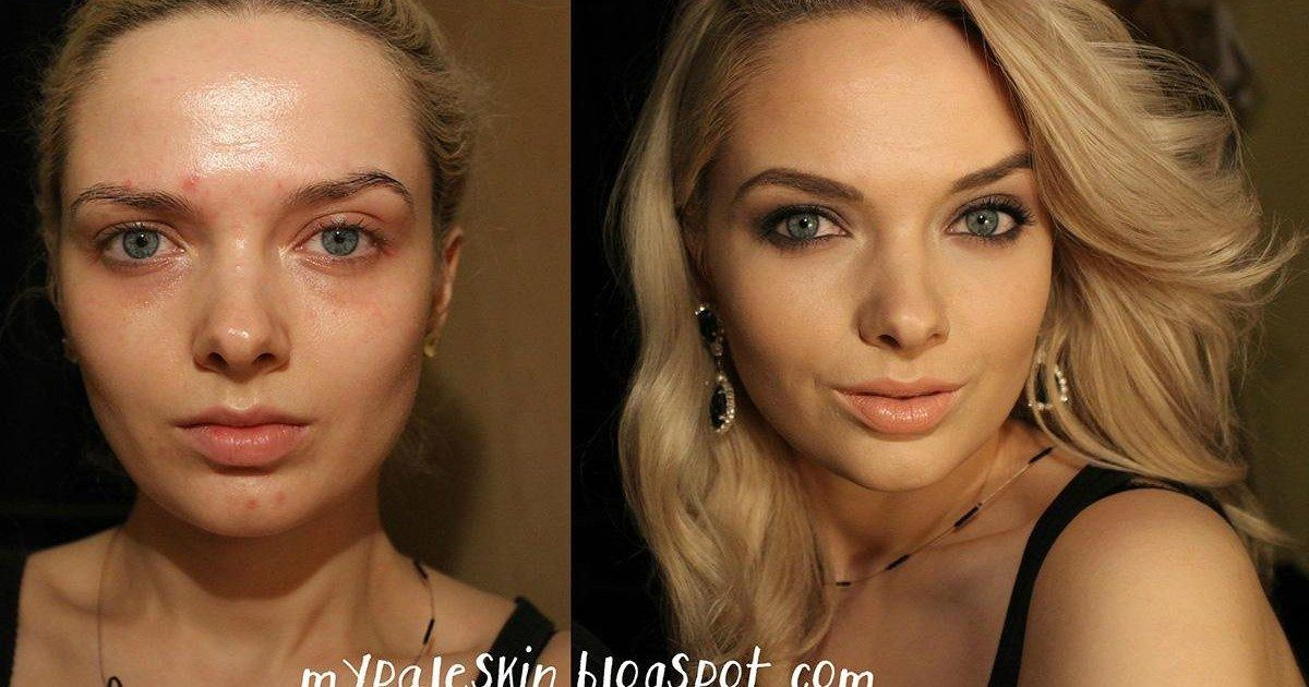 Persécutée pour son acné, cette YouTubeuse beauté répond à ses...