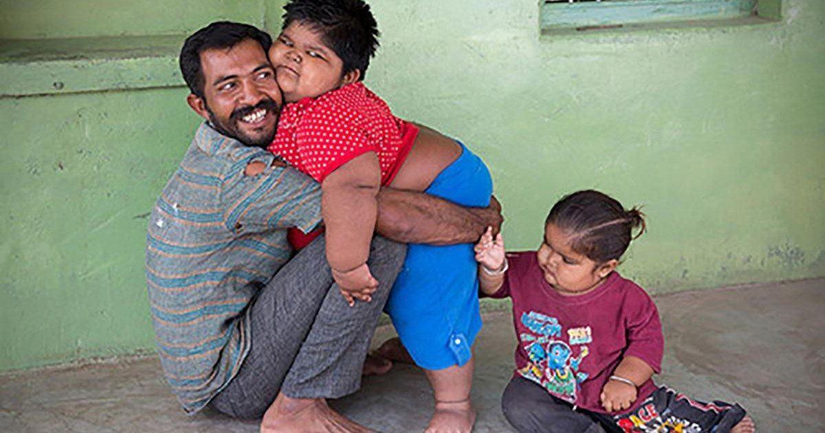 Rameshbhai, le père qui était prêt à vendre son rein pour soigner ses enfants obèses !