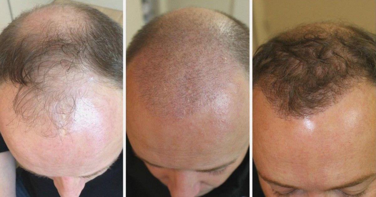 Comment se fait la repousse après une greffe de cheveux ?