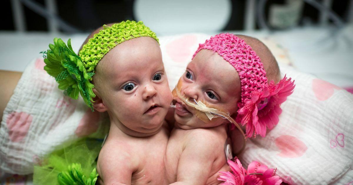 Des jumelles siamoises séparées après 7 heures d'opération avec plus 75 spécialistes