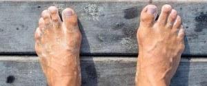 Comment faire pour soigner une mycoses des ongles avec de...