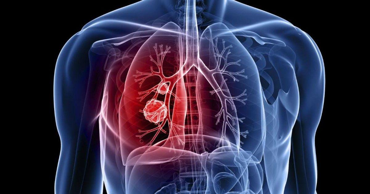 Quels sont les symptômes du cancer auxquels nous devons faire attention